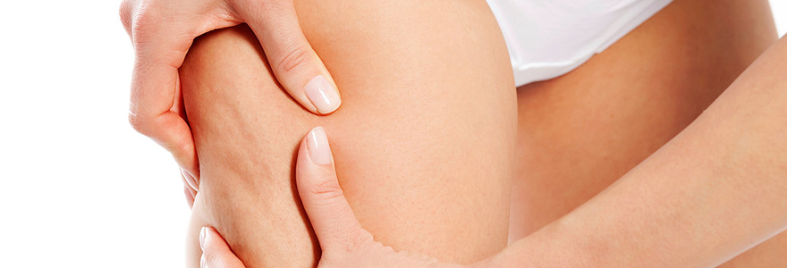cellulite incrustée