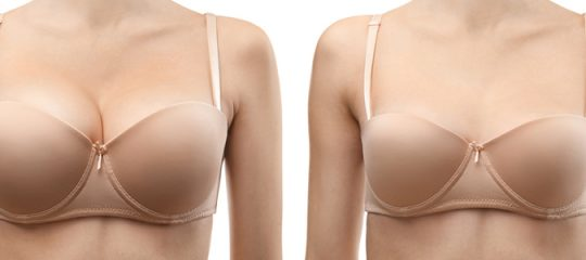 diminuer le volume de ses seins