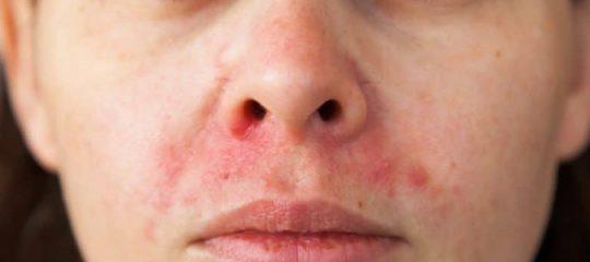 le psoriasis du visage